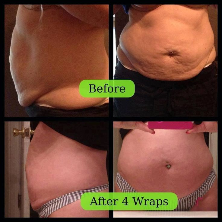 it works ultimate body applicator before and after